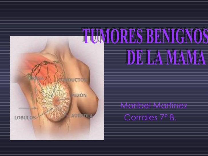 Maribel Martínez  Corrales 7º B.  TUMORES BENIGNOS  DE LA MAMA