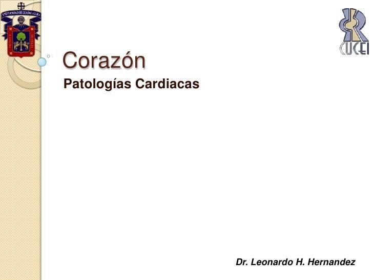 Corazón<br />Patologías Cardiacas<br />Dr. Leonardo H. Hernandez<br />