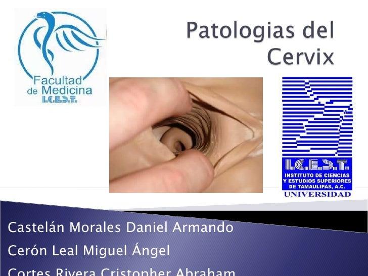 Patologias del cervix