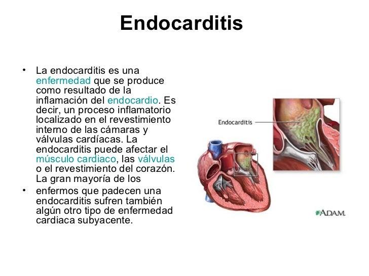 cuales son las enfermedades del sistema circulatorio