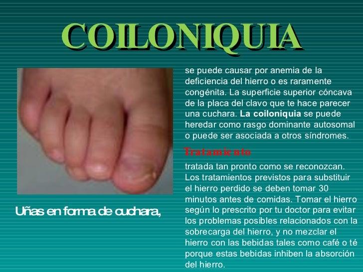 El tratamiento del hongo de los pies y las uñas por el vinagre