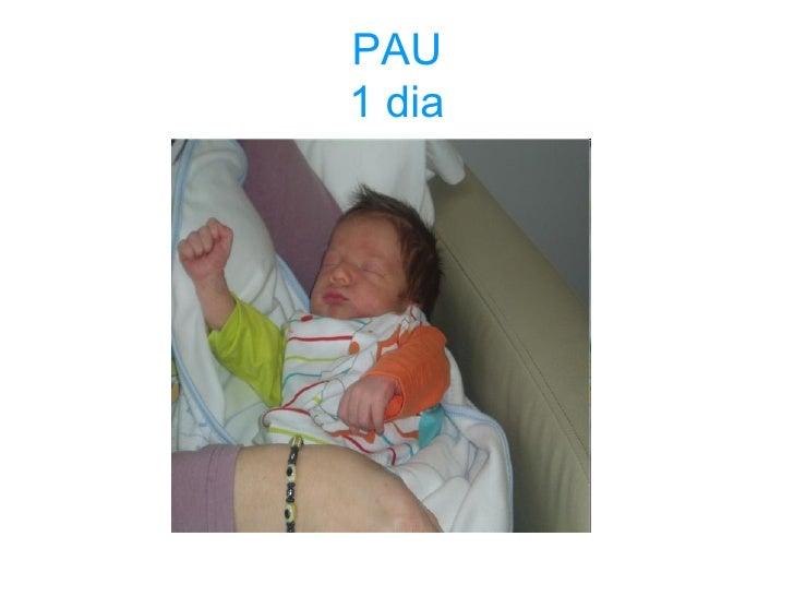 PAU 1 dia