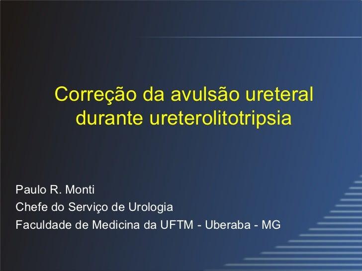 Correção da avulsão ureteral durante ureterolitotripsia Paulo R. Monti Chefe do Serviço de Urologia Faculdade de Medicina ...