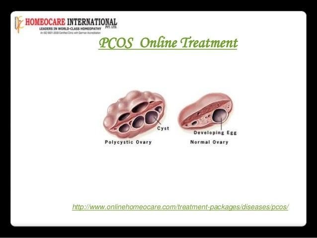 PCOD treatment online