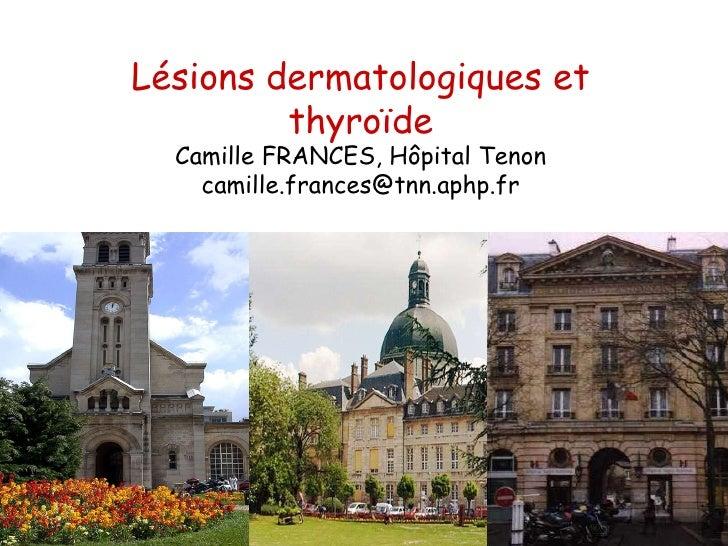 Lésions dermatologiques et thyroïde Camille FRANCES, Hôpital Tenon [email_address]