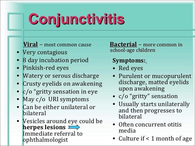 Pediatric conjunctivitis.