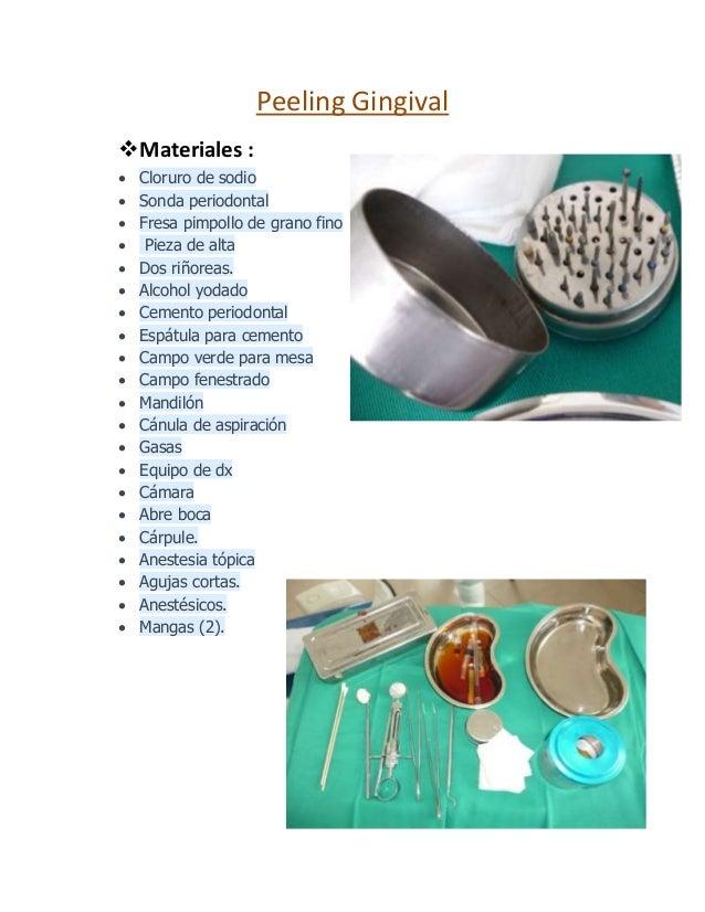 Peeling Gingival Materiales :  Cloruro de sodio  Sonda periodontal  Fresa pimpollo de grano fino  Pieza de alta  Dos...