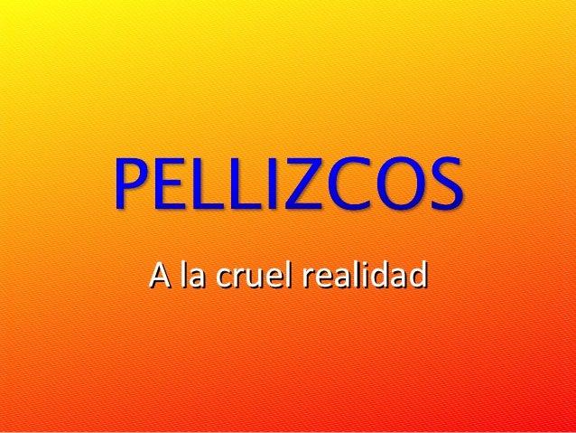 Pellizcos