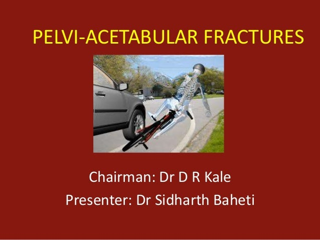 Pelvic and acetabular fractures