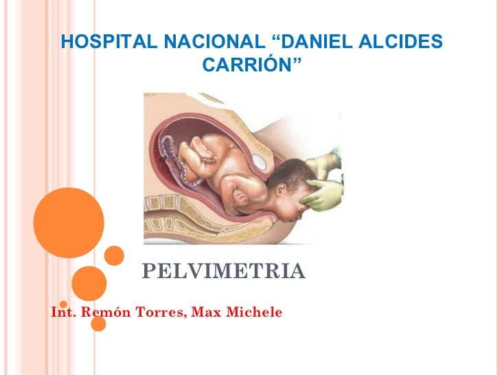 "HOSPITAL NACIONAL ""DANIEL ALCIDES             CARRIÓN""           PELVIMETRIAInt. Remón Torres, Max Michele"