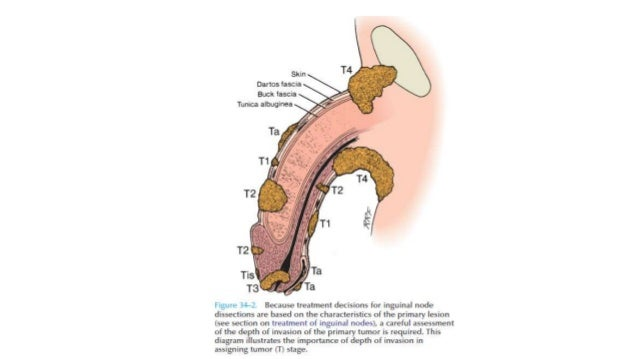 Basal Cell Carcinoma (BCC) - SkinCancer.org