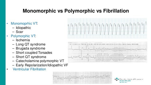 Ventricular Arrhythmias: Ablating Our Way Out of ...