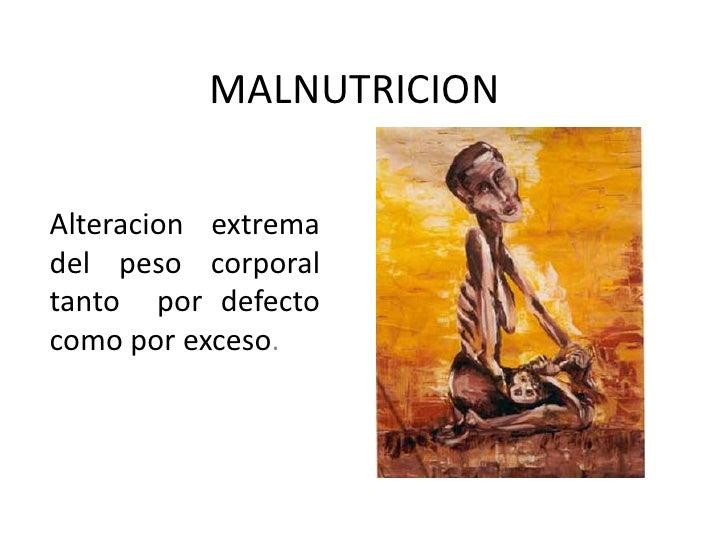 MALNUTRICION<br />Alteracionextrema del peso corporal tantopordefectocomoporexceso.<br />