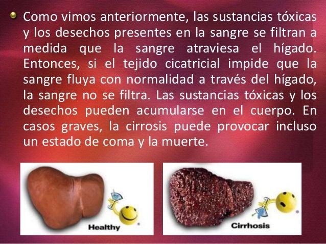 La información sobre la actividad sobre la profiláctica del alcoholismo y el tabaquismo