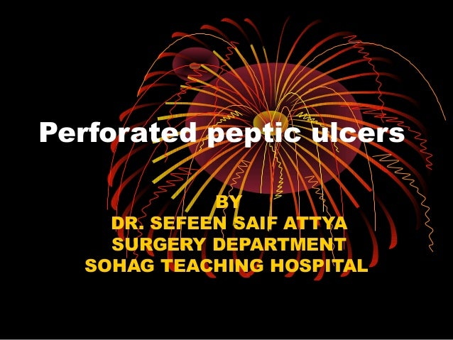 Perforated peptic ulcers
