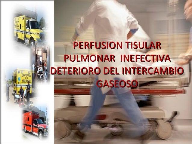 Perfusion Tisular