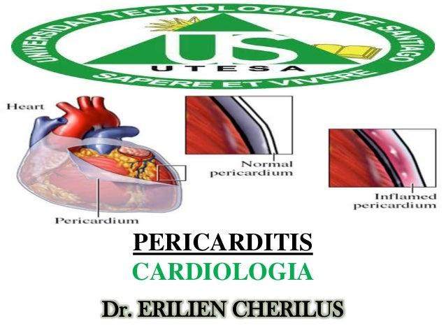 PERICARDITIS CARDIOLOGIA Dr. ERILIEN CHERILUS