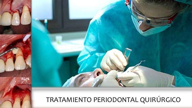 TRATAMIENTO PERIODONTAL QUIRÚRGICO