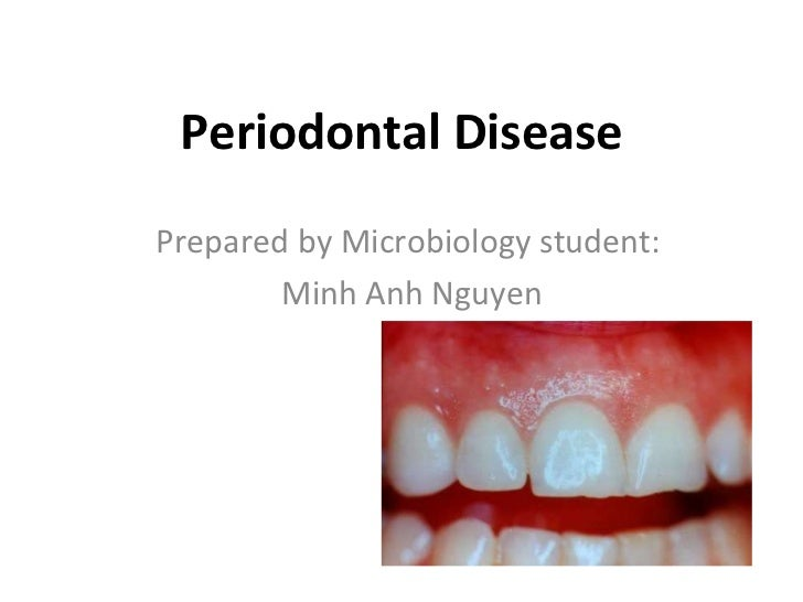 Periodontal Disease Prepared by Microbiology student: Minh Anh Nguyen
