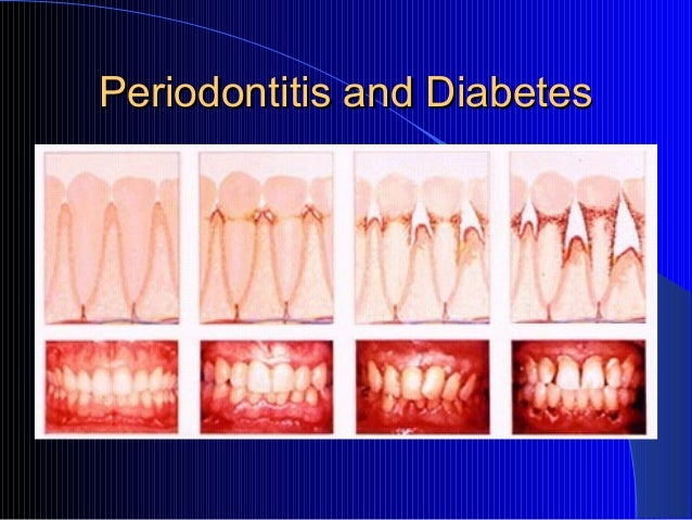 periodontal disease essay Smoking puts a person at an increased risk for gum disease or periodontal disease studies show that smoking is a major risk factor for the development and progression of periodontal disease the body's defense mechanisms against the disease are crippled so that the disease has freedom to take over the mouth.
