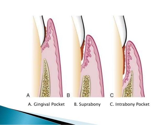 Periodontal Pocket