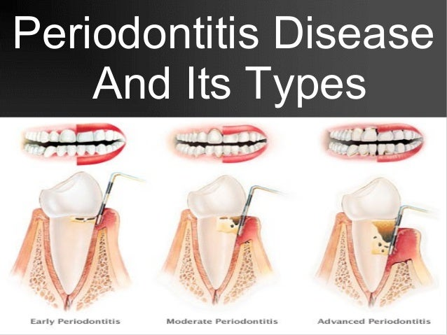 Predicting periodontitis at state and local levels in the United States