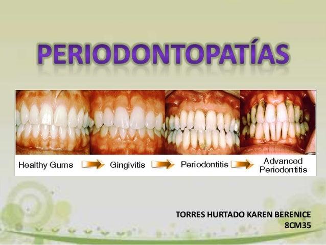 TORRES HURTADO KAREN BERENICE 8CM35