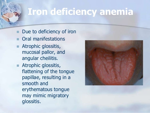 adult iron deficiency