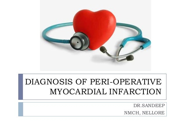DIAGNOSIS OF PERI-OPERATIVE MYOCARDIAL INFARCTION DR.SANDEEP NMCH, NELLORE