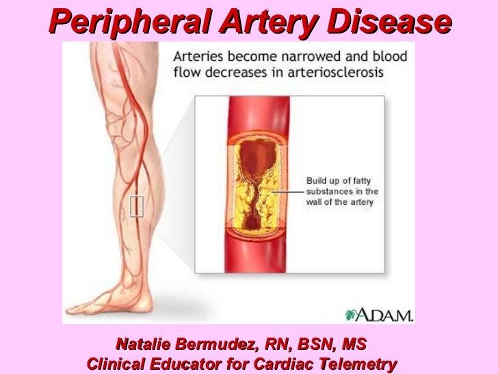 Peripheral Artery Disease Natalie Bermudez, RN, BSN, MS Clinical Educator for Cardiac Telemetry