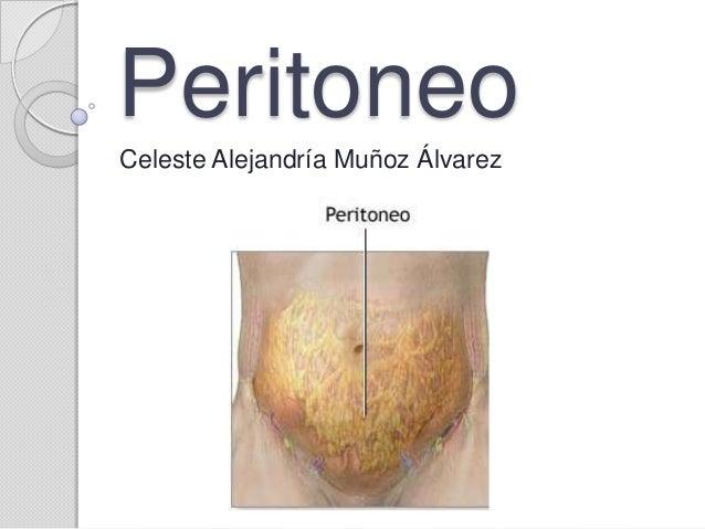 Peritoneo for De donde se saca el marmol