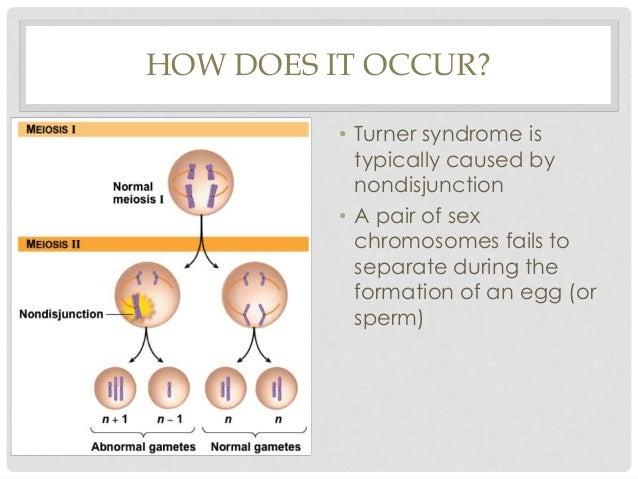 Pervasive developmental disorders (turner syndrome, klinefelter's syn ... Webbed Hands