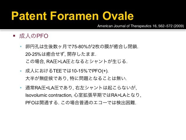 Patent Foramen Ovale                              American Journal of Therapeutics 16, 562–572 (2009)   成人のPFO     卵円孔は生...