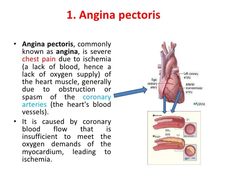 the causes symptoms and forms of angina pectoris Pectoris = ischemic heart disease (ihd) angina pectoris definition ankhon = strangling •the most common form of angina •consequence of coronary atherosclerosis relief of angina symptoms cardiac.