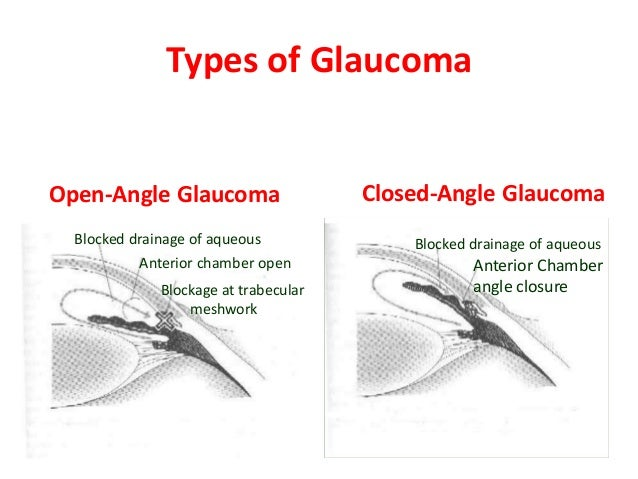 Acute Angle Closure Glaucoma Natural Treatment
