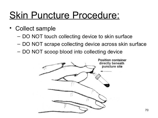 puncture site When you have angioplasty to reopen a blocked artery, the entire procedure will be accomplished through a small puncture site in the skin on your leg.