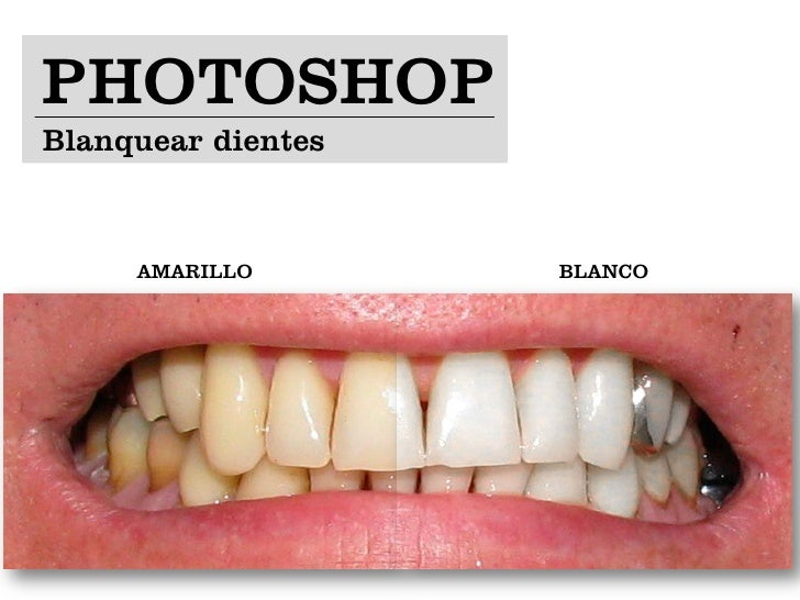 PHOTOSHOPBlanquear dientes     AMARILLO       BLANCO