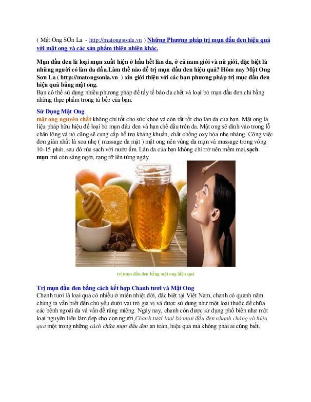 Phương pháp trị mụn đầu đen bằng mật ong