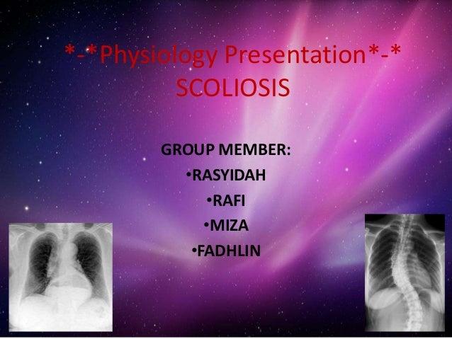 *-*Physiology Presentation*-* SCOLIOSIS GROUP MEMBER: •RASYIDAH •RAFI •MIZA •FADHLIN