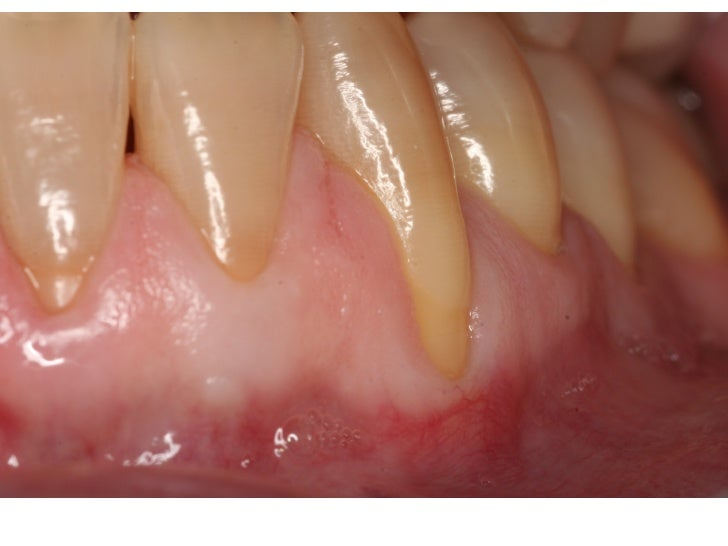 Pictures Of Connetive tissue grafting