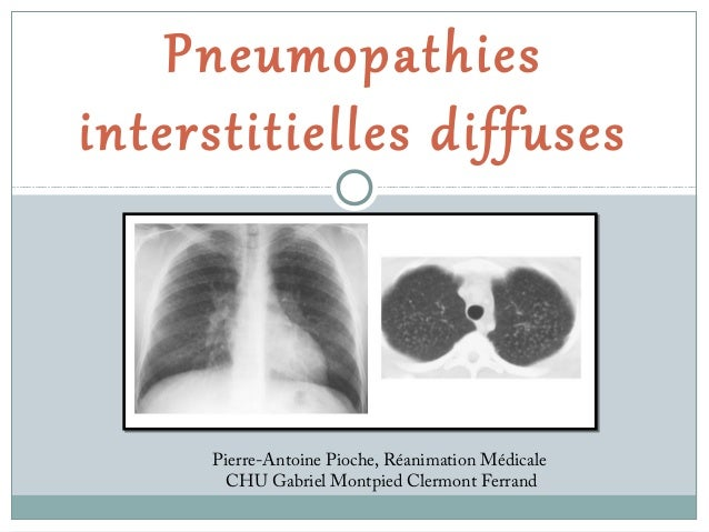 Pneumopathies interstitielles diffuses  Pierre-Antoine Pioche, Réanimation Médicale CHU Gabriel Montpied Clermont Ferrand