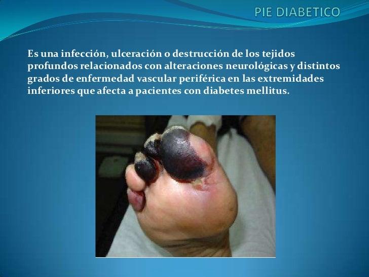 Es una infección, ulceración o destrucción de los tejidosprofundos relacionados con alteraciones neurológicas y distintosg...