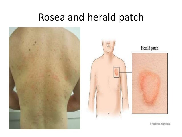 Herald patch rash photo