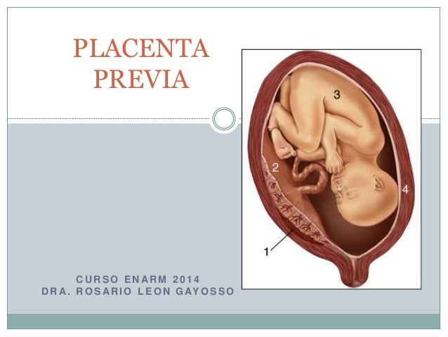 placenta previa research paper Includes: trophoblast research, the annual supplement that is available for free online placenta publishes high-quality original articles and.