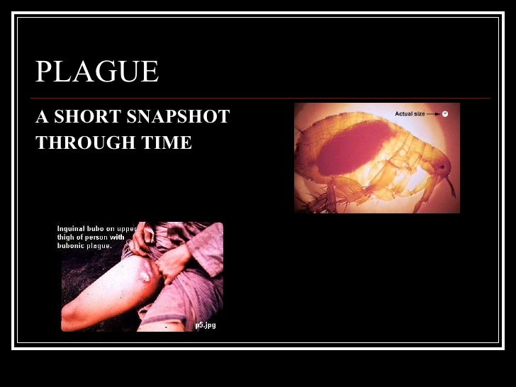 PLAGUE <ul><li>A SHORT SNAPSHOT  </li></ul><ul><li>THROUGH TIME </li></ul>