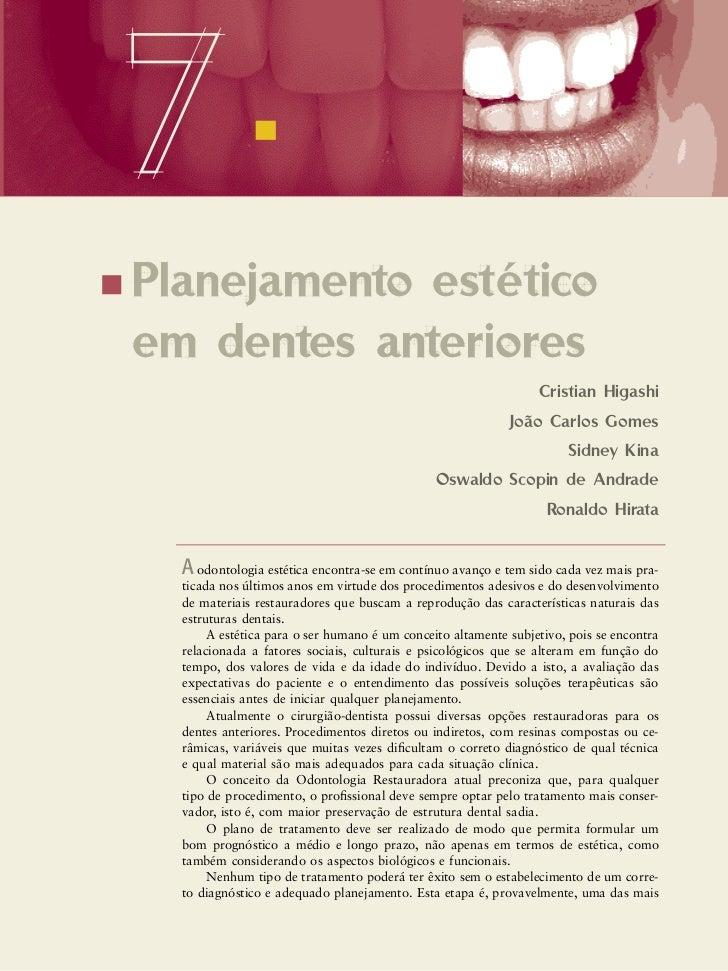 Planej estet dentes_anter_final