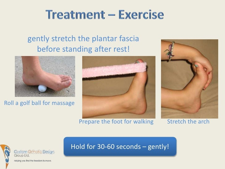 Plantar Fasciitis - a pain in the foot