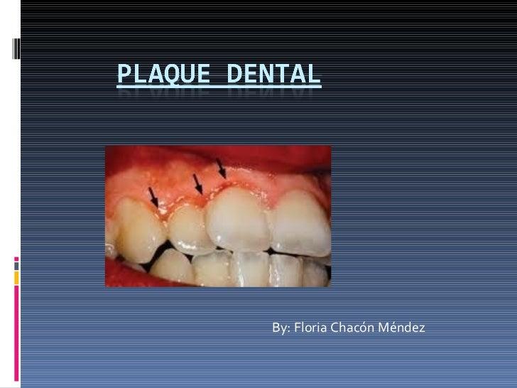 Plaque dental