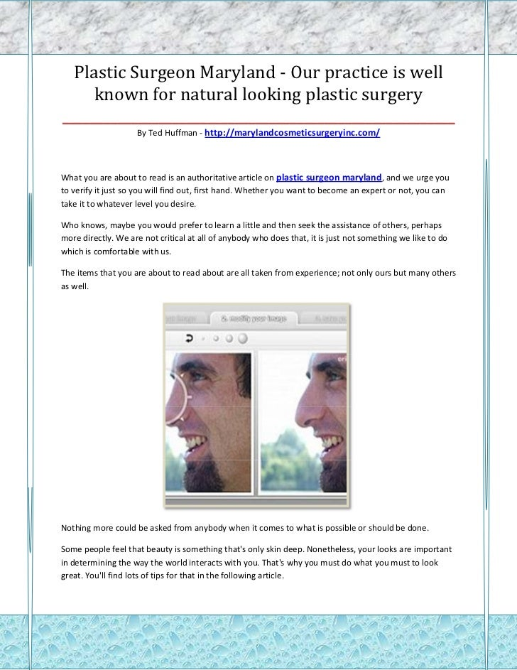 Plastic Surgeon Maryland - Our practice is well     known for natural looking plastic surgery_____________________________...