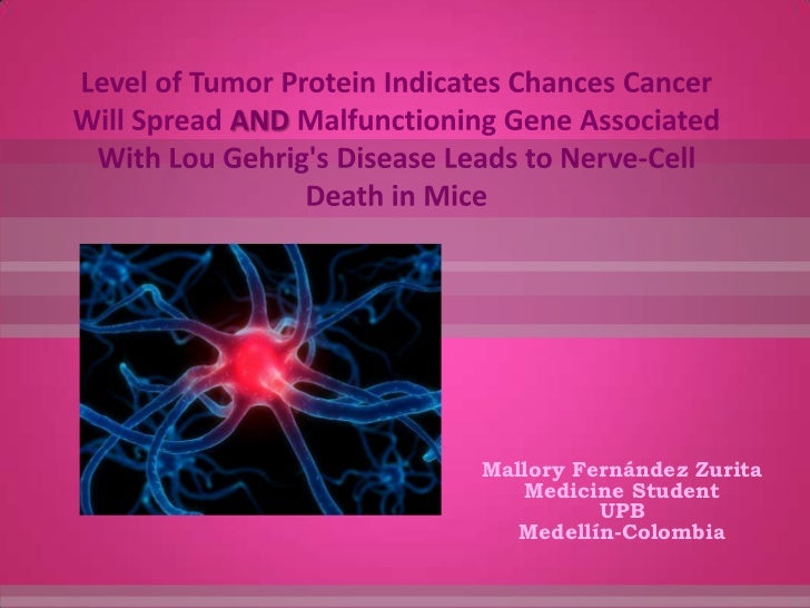 Level of Tumor Protein Indicates Chances Cancer Will Spread AND Malfunctioning Gene Associated With Lou Gehrig's Disease L...